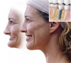 Na čo slúžia zubné implantáty?