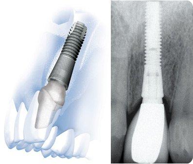 Čo je osseointegrácia?