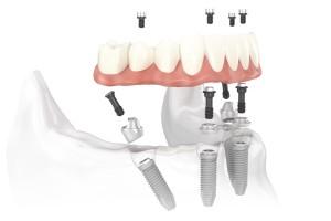 Aké sú možnosti náhrady všetkých chýbajúcich zubov?