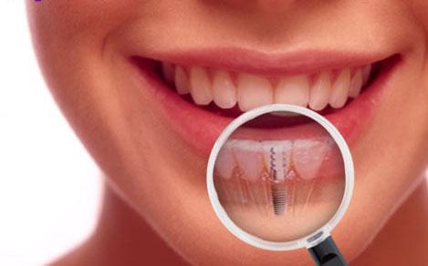 Aké sú možné komplikácie zubných implantátov?