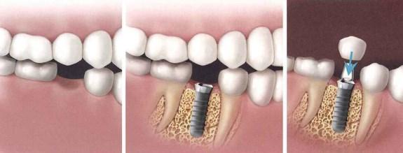 Aké sú možnosti liečby pre náhradu jedného zubu?