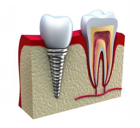 Pocítim rozdiel medzi implantátmi a skutočnými zubami?