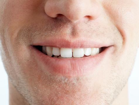 Rozoznajú moji priatelia, že mám v ústach implantát?