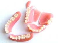 Aké sú možnosti náhrady dvoch alebo viacerých priľahlých, chýbajúcich zubov?