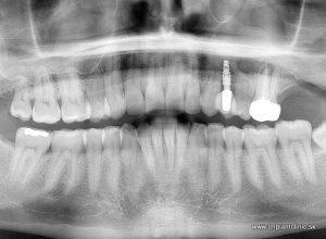 Nasadená implantátová zubná korunka