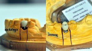 Vyrobená implantátová zubná korunka na modeli