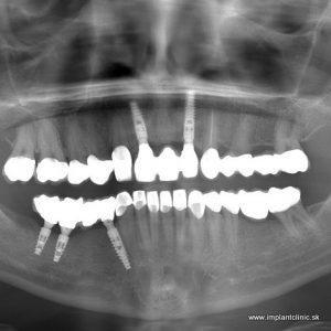 Zubné korunky a zubné implantáty