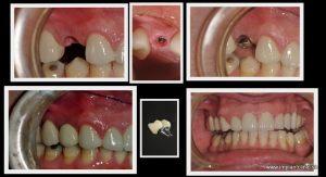 Koláž náhrady jedného zuba pomocou zubného implantátu